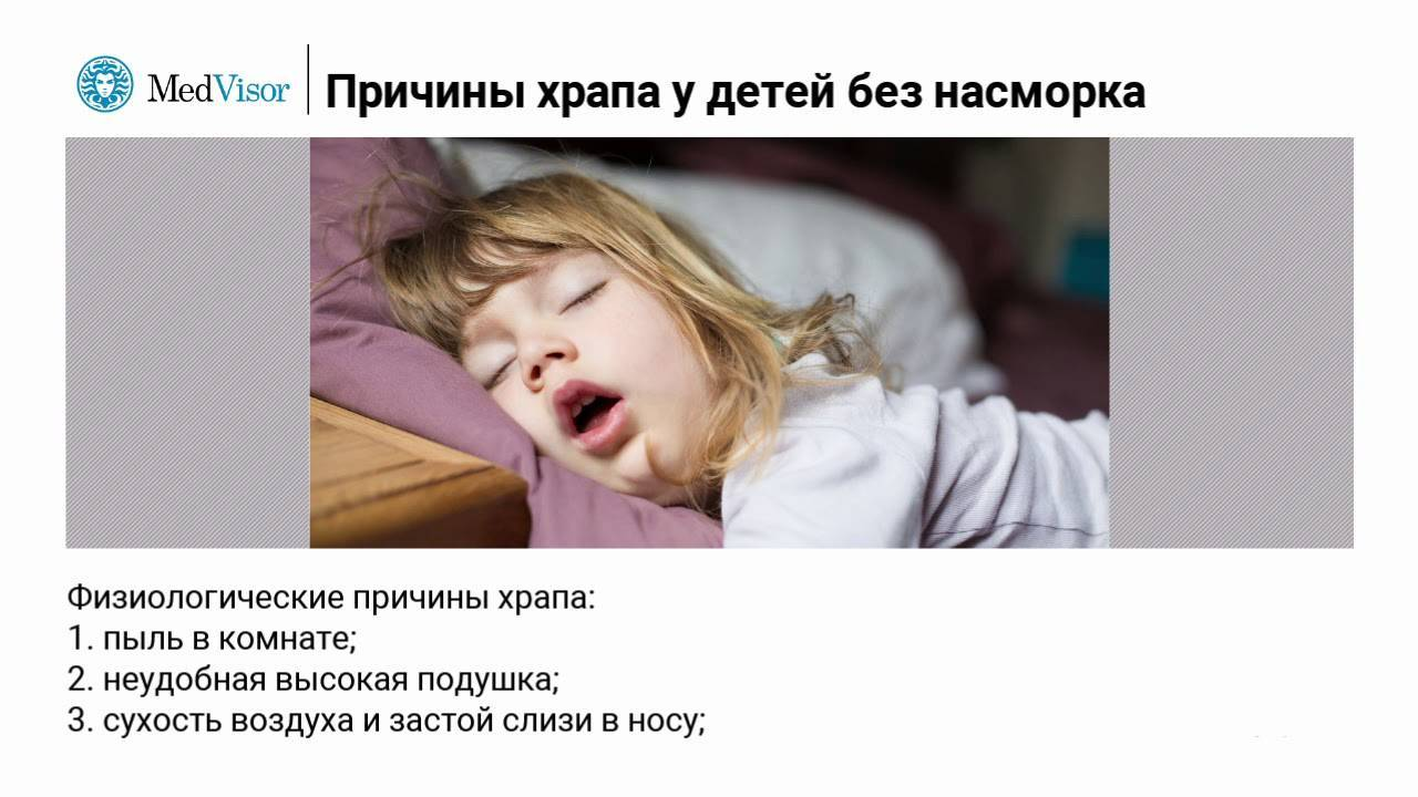 Храп у ребенка во сне: причины и методика лечения