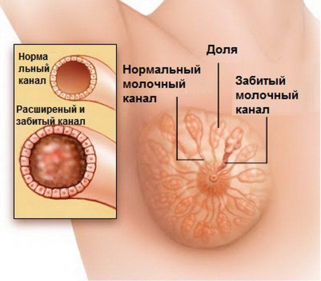 Уплотнение в молочной железе при грудном вскармливании: причины образования комков, шишек в груди, лечение