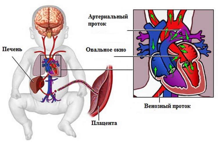 Открытое овальное окно в сердце у детей | компетентно о здоровье на ilive