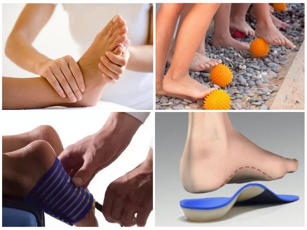 Профилактика плоскостопия у детей дошкольного возраста: гимнастика и упражнения, рекомендации для детей 2-3 лет