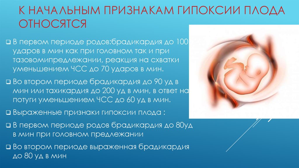 Брадикардия у беременных