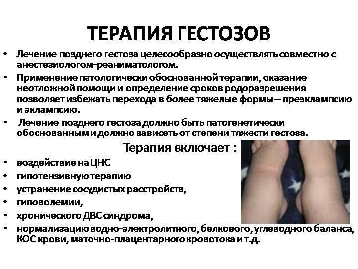 Гестоз при беременности. причины, симптомы, лечение и профилактика :: polismed.com
