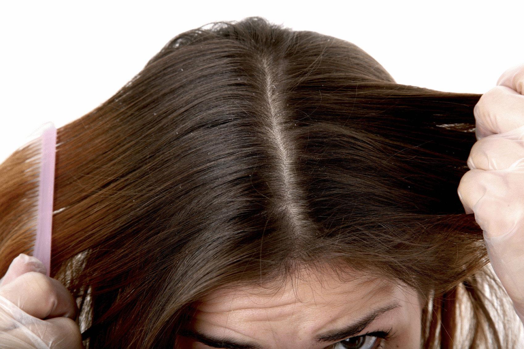Сухая кожа головы: что делать, как увлажнить
