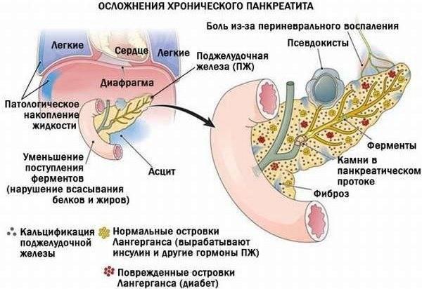 Панкреатит у детей: симптомы, лечение (препаратами, народными средствами, диетой), причины, виды (острый и хронический), диагностика и профилактика