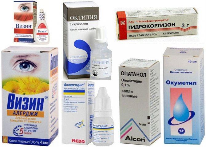 Как лечить конъюнктивит в домашних условиях у взрослых: народные средства (ромашка, заварка, лавровый лист, алоэ), лекарства, капли