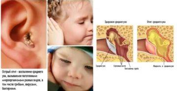 Что делать если у ребенка чешутся уши. грудной ребенок постоянно чешет уши и голову, трет затылок — почему это происходит