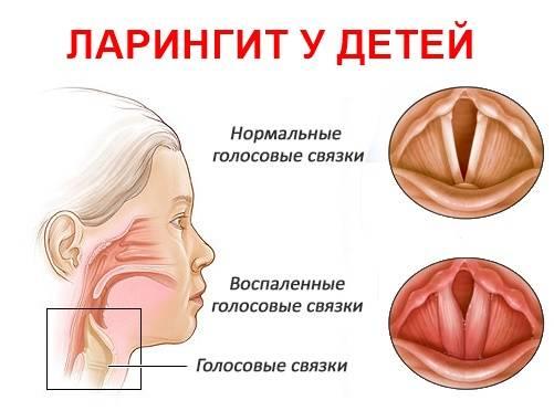 Комаровский - ларингит: лечение, симптомы у детей, ларинготрахеит
