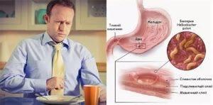 Симптомы остановившегося желудка: как запустить, первая помощь и рекомендации
