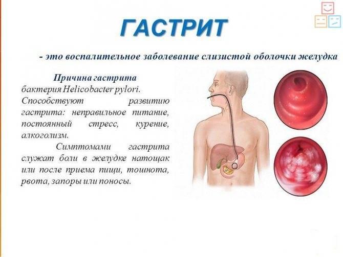 Как запустить желудок ребенку после рвоты - лечение гастрита