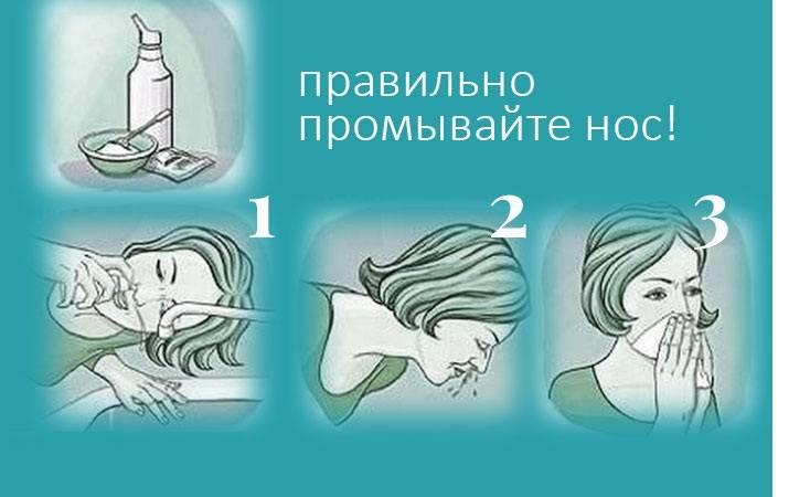 Чем лечить насморк при беременности 1 триместр – что можно беременным