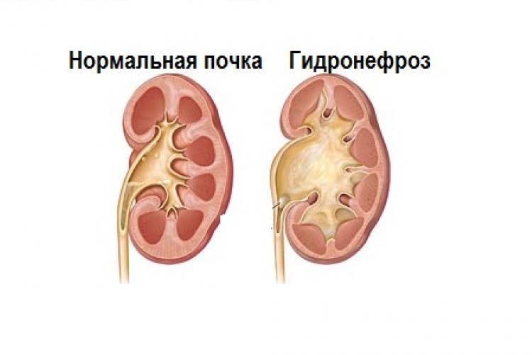 Пиелоэктазия правой почки, лечение и возможные осложнения