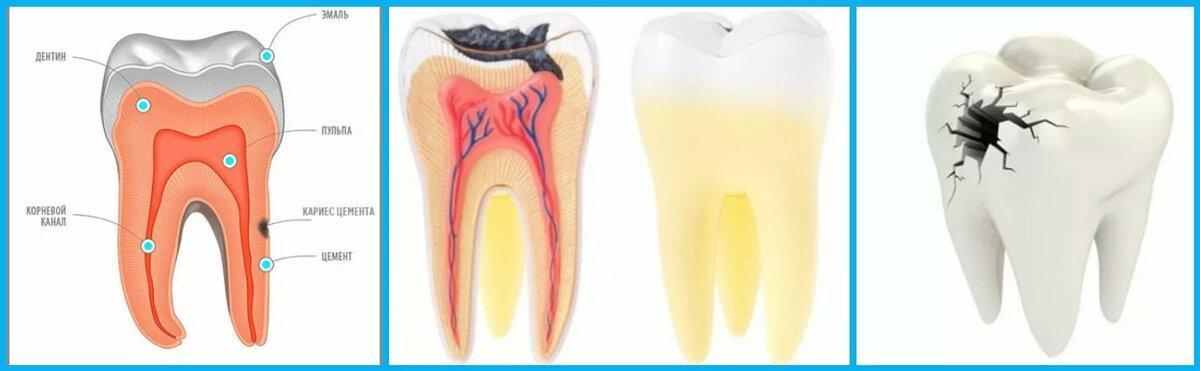 У ребенка болит зуб: что нужно делать при зубной боли, как обезболить и какие лекарства использовать?