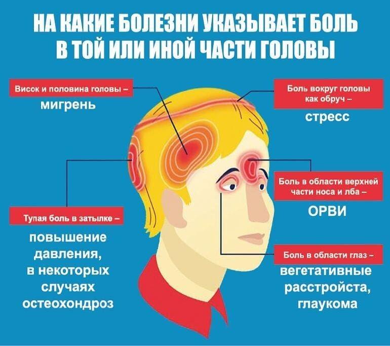 Симптомы и лечение мигрени. у кого бывают приступы головной боли