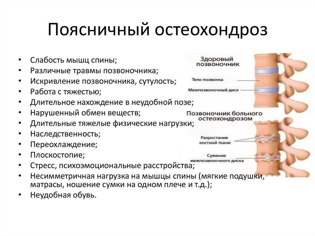 Почему возникает межпозвонковый остеохондроз: причины, симптомы, лечение болезни