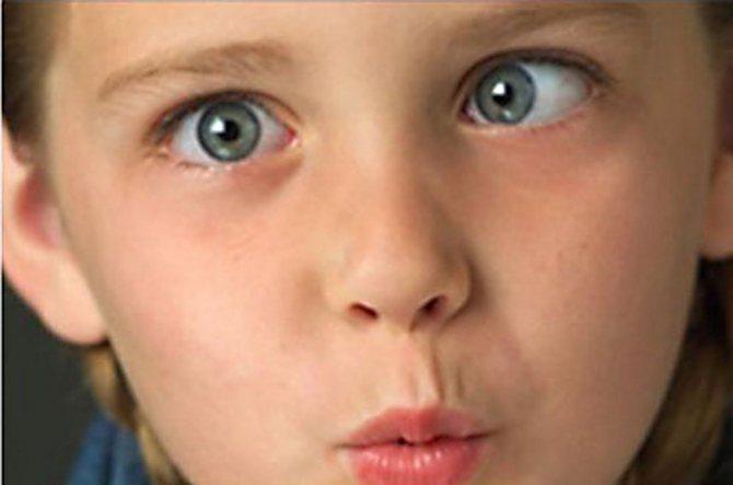 Как лечат детское косоглазие? косоглазие у детей после года