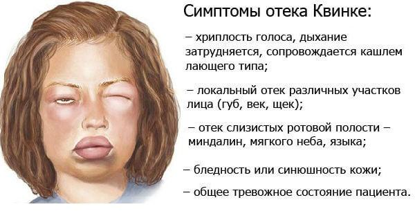 Симптомы и лечение отека квинке у детей