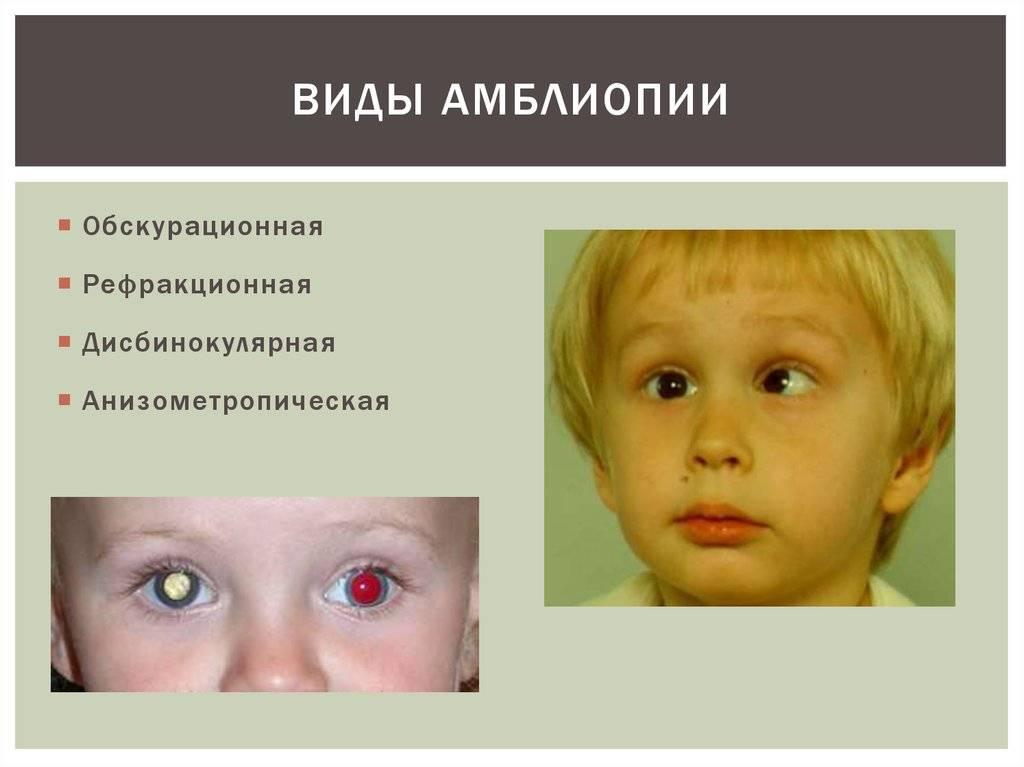 Амблиопия у детей: как лечить «ленивый» глаз?