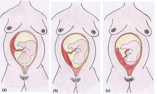 Плацента расположена по передней стенке матки: причины и осложнения