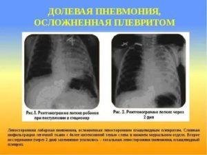 Вирусная пневмония: симптомы у детей и лечение, признаки, бывает ли, инкубационный период, переход в бактериальную