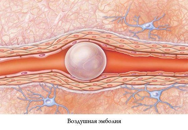 Эмболия околоплодными водами: что это такое, причины при кесаревом сечении и клинические рекомендации