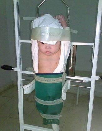 Рентген легких у детей: как часто и когда нужно делать