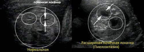 Пиелоэктазия почки у ребенка: причины, симптомы, принципы лечения