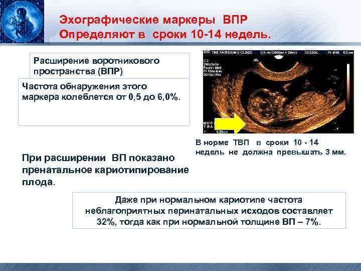 Что такое впр плода при беременности. диагностика впр во время беременности - wikiorganizm.ru