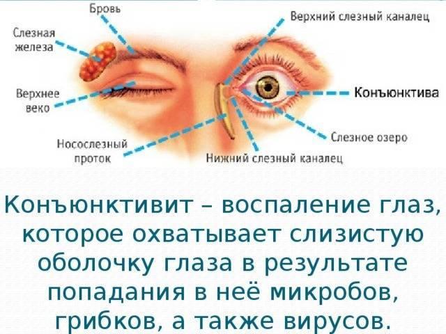 У ребенка болят глаза, причины, симптомы, как лечить и что делать если у ребенка температура и болят глаза.