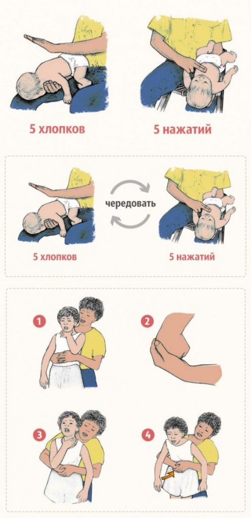 Асфиксия новорожденных. причины удушья у детей раннего возраста. как оказать ребенку первую помощь?