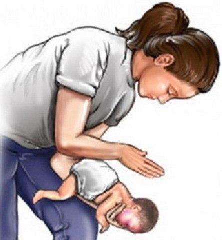 Основные действия, если ребенок подавился