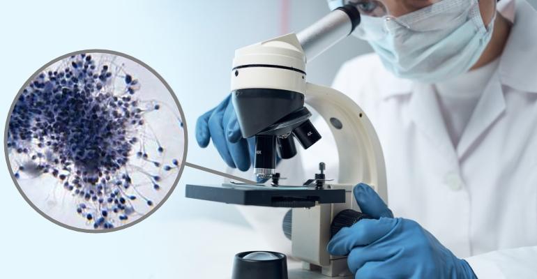 Причины появления крови в сперме по результатам проведения спермограммы, методы диагностики, особенности лечения