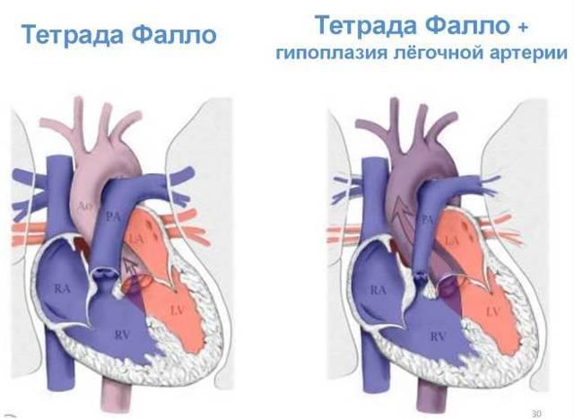 Открытое овальное окно в сердце у ребенка: у грудничка и новорожденного дырка в серце