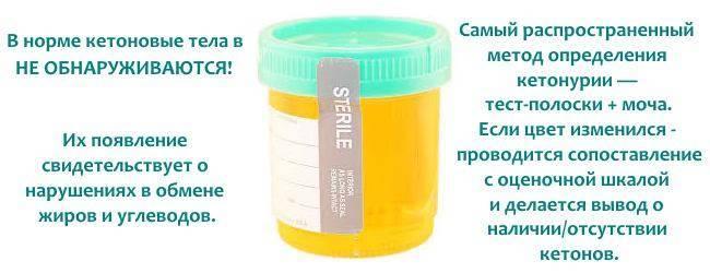 Ацетон в моче у ребенка: причины и симптомы повышения кетоновых тел в крови / mama66.ru