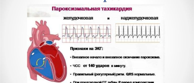 Тахикардия сердца у детей — что это такое и как ее лечить?