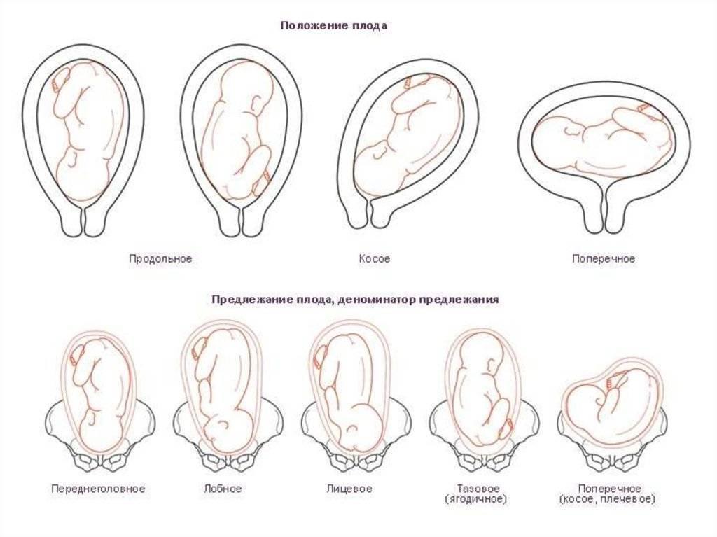 Матка расположена низко при беременности - причины и лечение