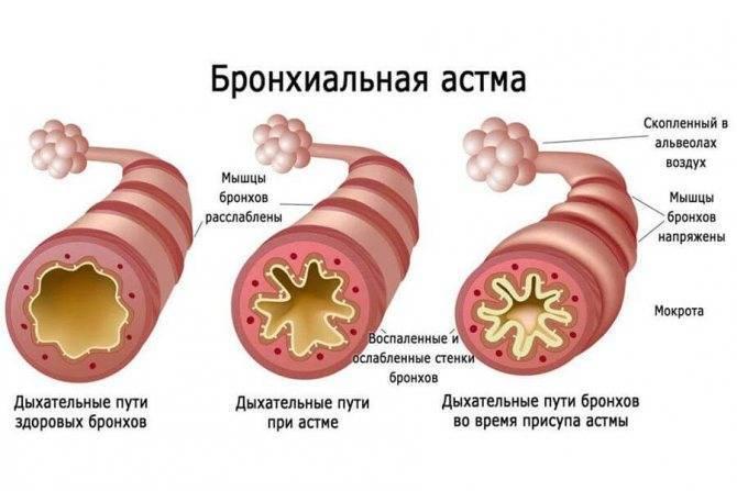 Бронхиальная астма у детей: признаки, симптомы и лечение pulmono.ru бронхиальная астма у детей: признаки, симптомы и лечение