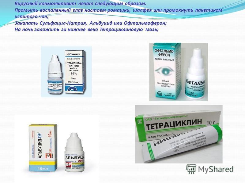 Конъюнктивит глаз - лечение у детей народными средствами: эффективные методы