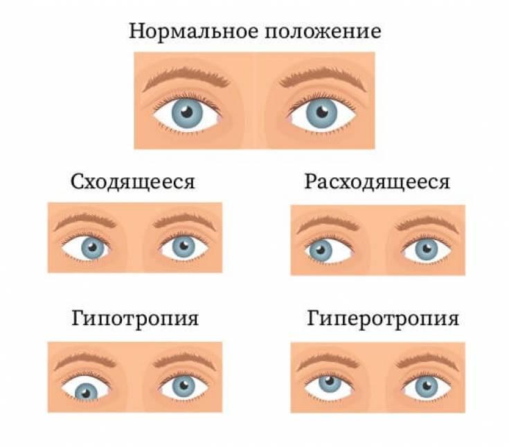 Почему глаза смотрят в разные стороны? косоглазие у новорожденных, стоит ли волноваться
