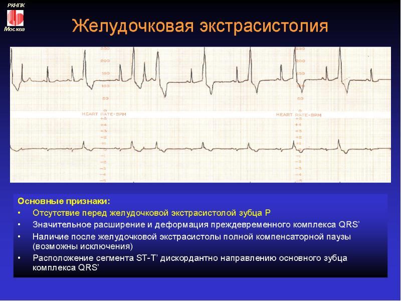 Желудочковая экстрасистолия у детей   симптомы и лечение желудочковой экстрасистолии у детей   компетентно о здоровье на ilive