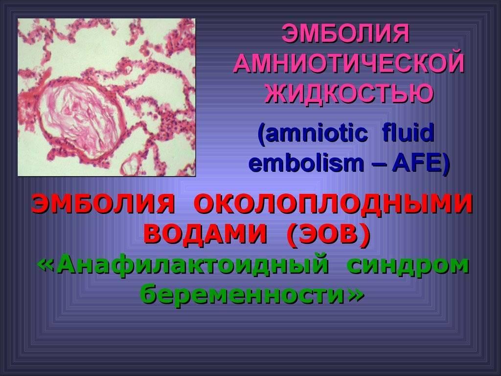 Как лечится эмболия (тромбоэмболия) околоплодных вод
