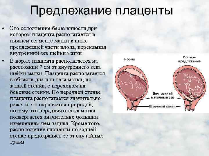 Предлежание плаценты - краевое, низкое, полное, центральное предлежание