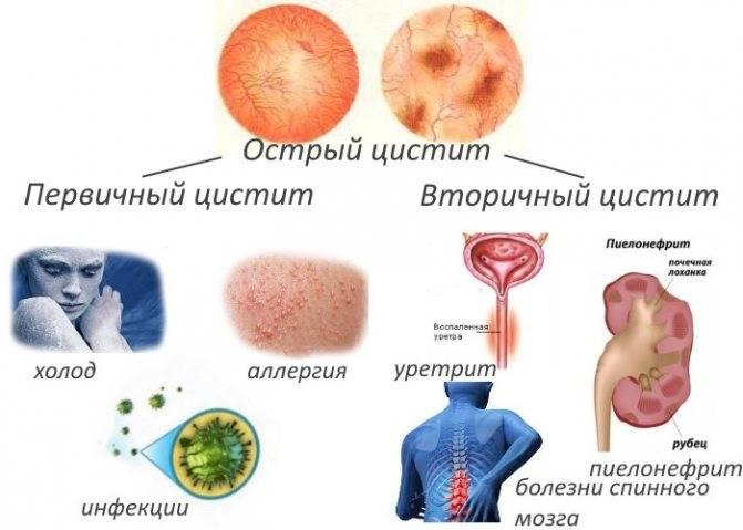 Цистит у подростка: симптомы, лечение, профилактика