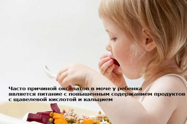 Оксалаты в моче: причины, нормы у взрослых и детей, диета, лечение