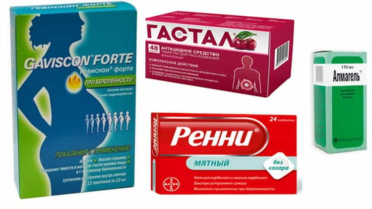 Таблетки от изжоги для беременных: обзор 8 лекарственных средств, цены