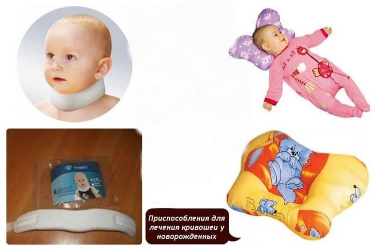 Кривошея у новорожденных и грудничков: первые признаки и лечение