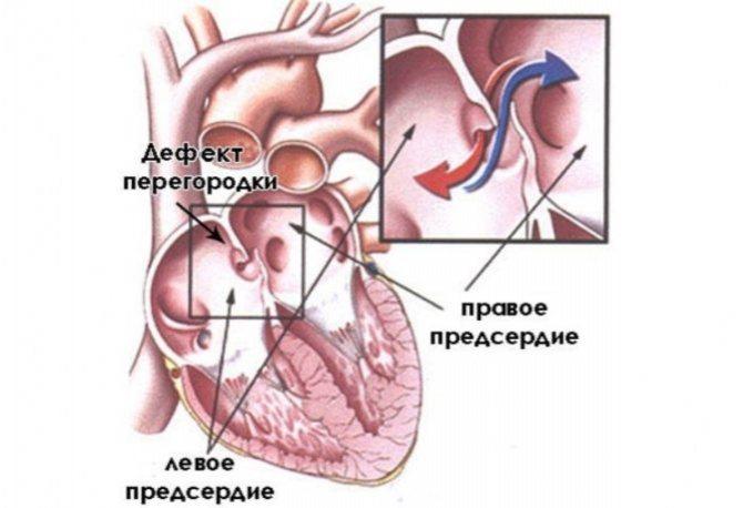 Открытое овальное окно в сердце у ребенка: причины незаращения, методы диагностики