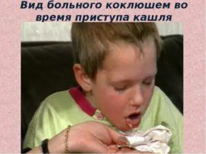 Кашель до рвоты у ребенка - что делать? / mama66.ru