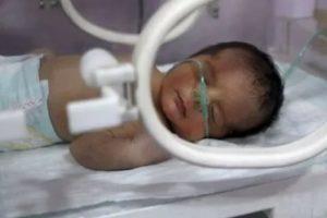 Гипоксия у новорожденного лечение | firstмама