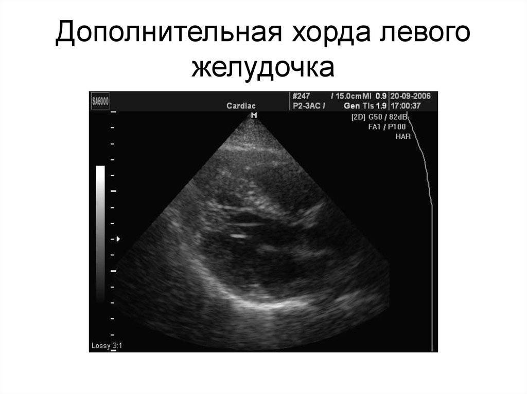 Дополнительная хорда левого желудочка сердца у ребенка: что это такое, причины, что делать