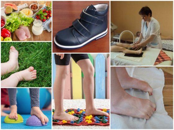 Плоскостопие у детей: причины, профилактика и методы лечения - лечение ног